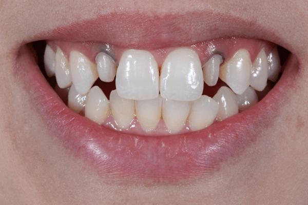 A influência do grau de translucidez de uma cerâmica vítrea no resultado estético em dentes anteriores