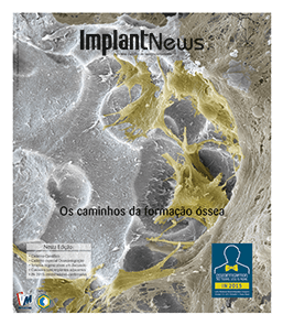 Revista ImplantNews V11N5