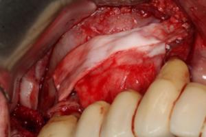 Barbell Technique: um novo conceito em reconstrução óssea para reabilitações funcionais e estéticas