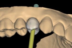 Reabilitação cirúrgica e protética totalmente digital de elemento unitário fraturado